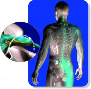 DRG Stimulation explained through an image. How could DRG stimulation impact CRPS RSD Pain.