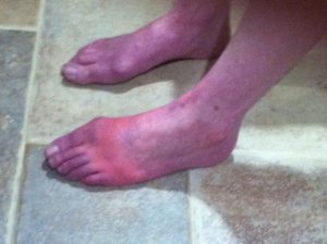 Nurse Beth's feet, which are normally affected by CRPS. She discusses the possible correlation between CRPS and GI issues