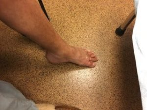 Tracy Coval's foot 2 weeks after surgery. Foot was regaining some normalcy with CRPS and dystonia
