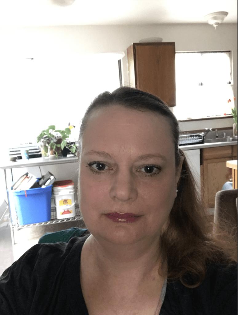 Elizabeth Kiss CRPS RSDSA