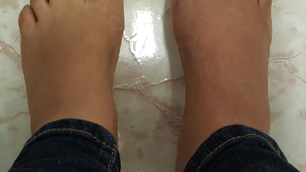 Jeannette Pellot CRPS feet2