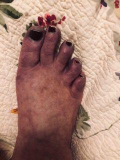 Kathleen Derby Feet CRPS