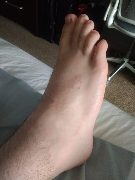 CRPS foot after Calmare theraphy