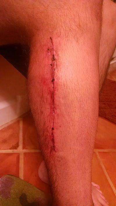 fibula surgery scar