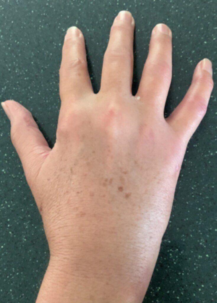 Teryl Worster Hand